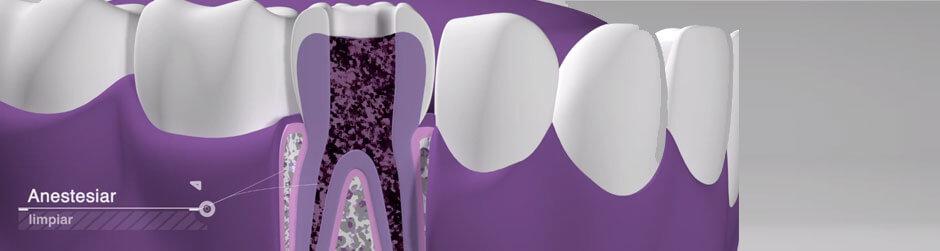 Vídeo endodoncia