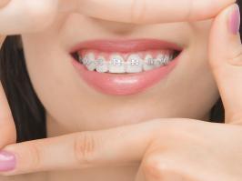 mujer con ortodoncia